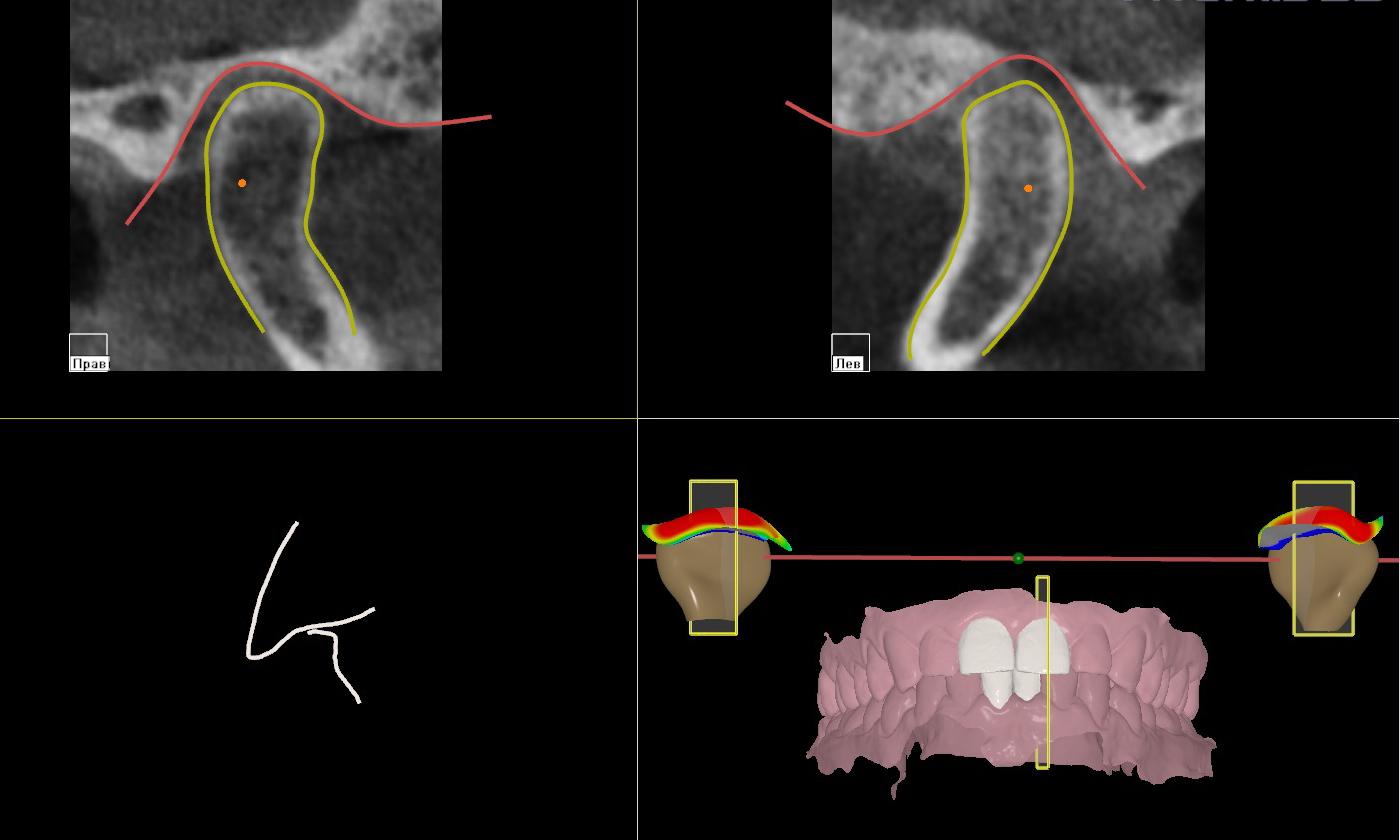 Диагностика заболеваний височно-нижнечелюстного сустава по компьютерной томограмме (КТ)