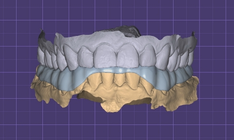 Виртуальные модели зубов и окклюзионная каппа (сплинт, ортотик)