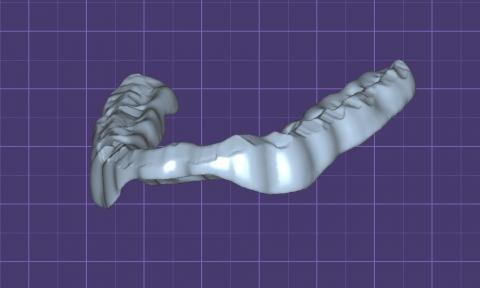 3D модель окклюзионной шины, каппы