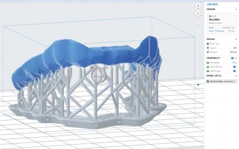 3D печать сплинта, капы, ортотика