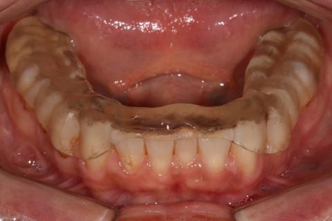 Фиксация сплинта в полость рта