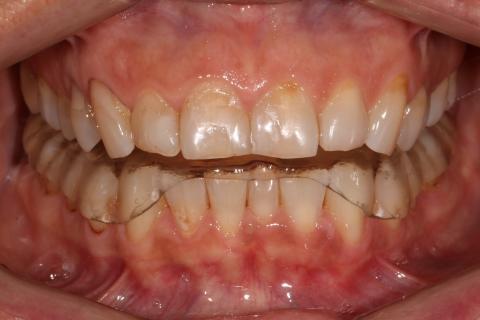 Окклюзионная адаптация сплинта в полости рта