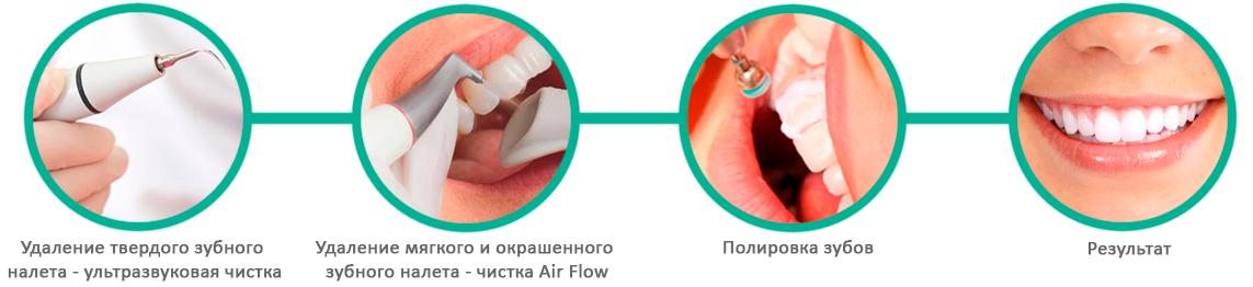 Этапы проведения профессиональной гигиены полости рта