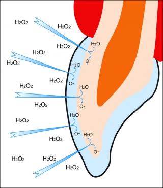 Действие активного кислорода на пигментные пятна эмали и дентина