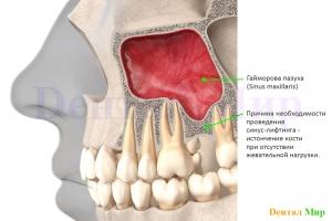 Латеральный разрез. Истончение кости в области синуса при отсутствии жевательной нагрузки