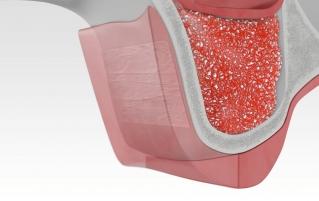 Укладка мембраны и ушивание десны