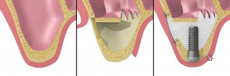 При достаточной для первичной стабилизации имплантата толщине кости, возможно проведение одномоментной имплантации