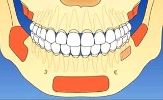 В стоматологии наиболее часто осуществляют забор аутогенного материала из указанных областей