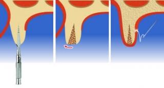 Этапы процедуры расщепления альвеолярного отростка челюсти