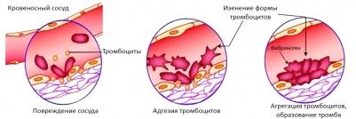 """""""Работа"""" тромбоцитов при повреждениях тканей"""