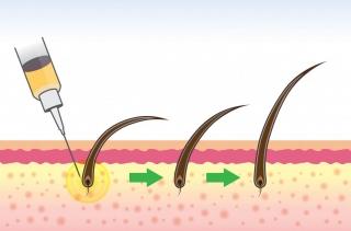 PRP при лечении алопеции