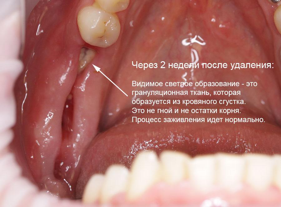 если не образовался кровяной сгусток после удаления зуба нашей жизни