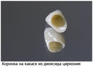 коронки из циркония фото