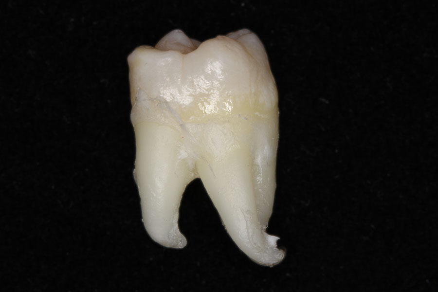 Зуб мудрости. Квалификация доктора позволила аккуратно удалить зуб целиком.