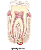 На этой странице можно посмотреть и скачать Картинки строение зубов.