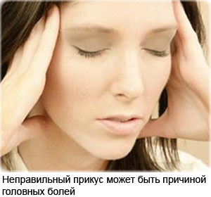 Одна из причин постоянных головных болей – неправильный прикус