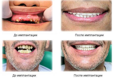 Зубные импланты в Краснодаре