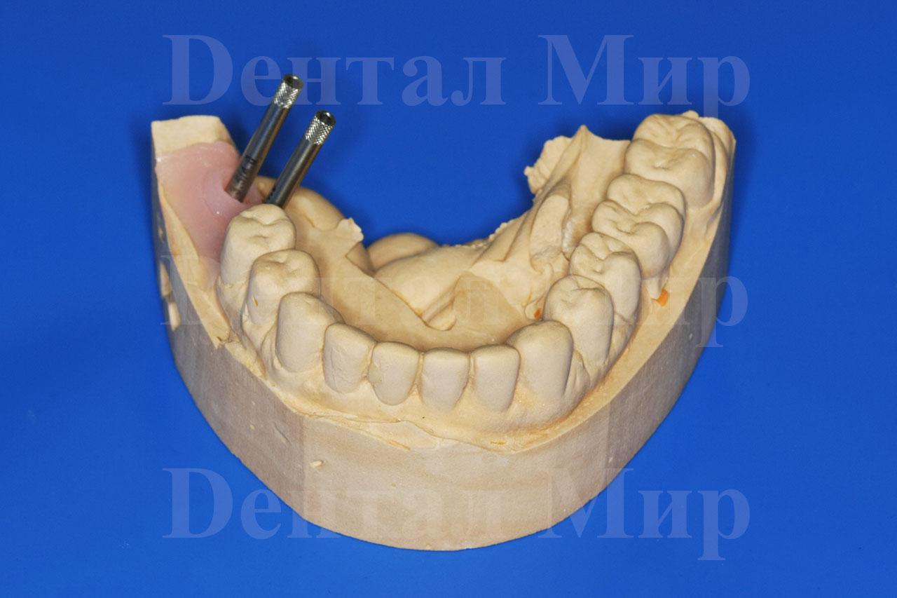 Расстояние между имплантом и зубом 2