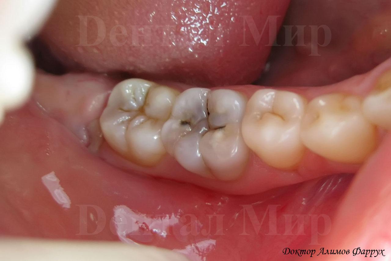 Кариес зубной