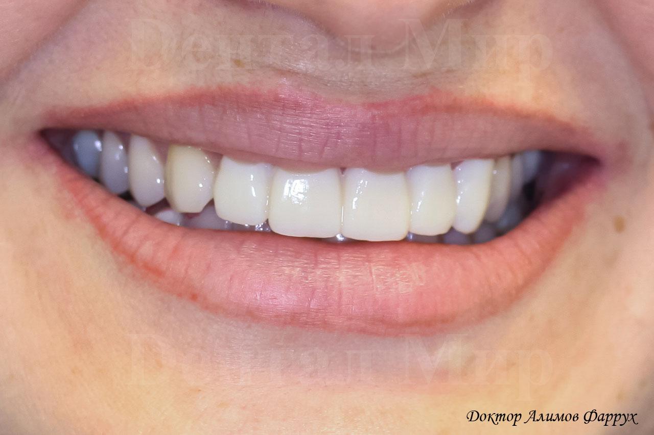 отбеливание зубов zoom 3 отзывы