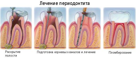 Как лечить периодонтит
