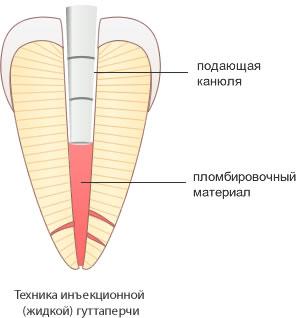 пломбирование корневого канала методом вертикальной конденсации