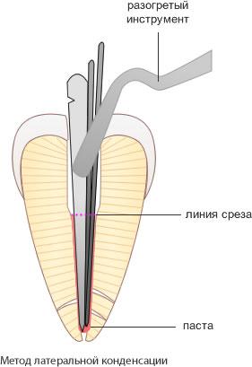 пломбирование корневого канала методом латеральной конденсации
