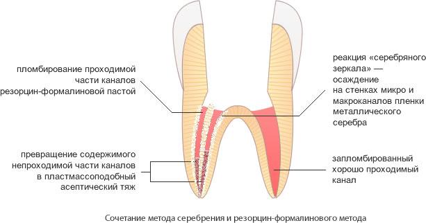 От чего болит резорциненный зуб