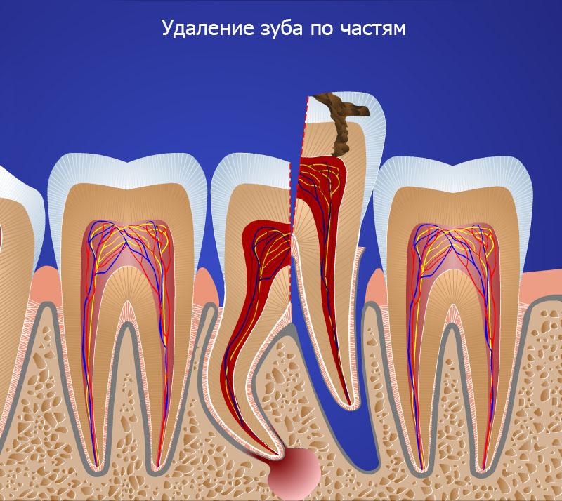 Искривленные корни зуба