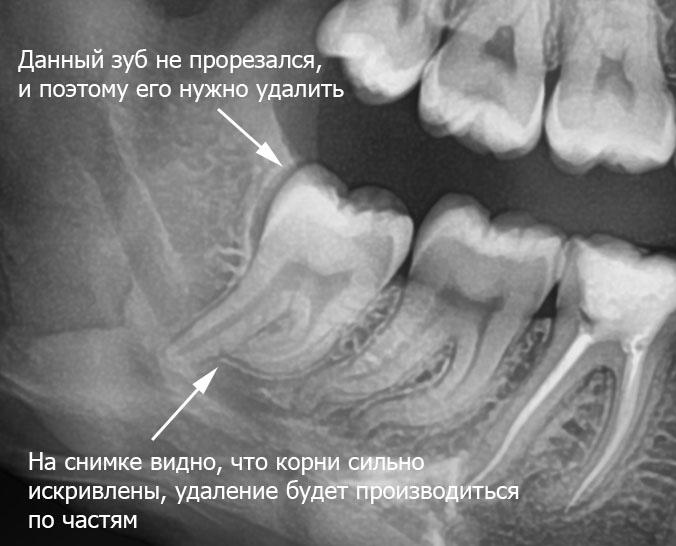 Искривленные корни зуба.