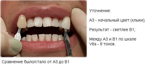 Полоски для отбеливания зубов самара