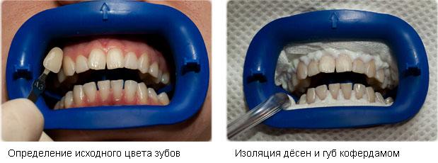 Отбеливание зубов системой beyond polus сша