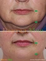 Изменение овала лица после лечения. Отражение в зеркале явно помолодело
