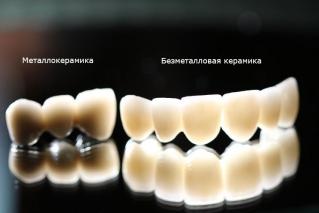 Сравнение оптических свойств металлокерамических коронок и полностью керамических