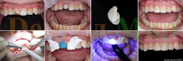 Фотографии работы по установке керамического винира e.max, изготовленной по технологии CEREC. Работа выполнена за один прием стоматолога