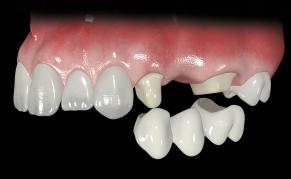 Мостовидный протез на жевательных зубах
