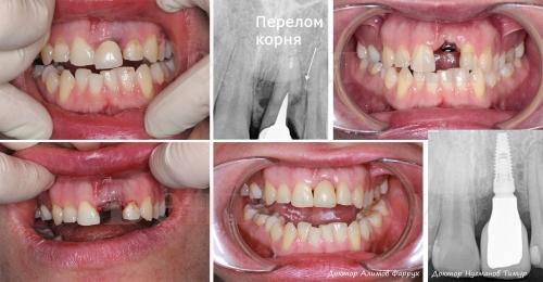 Сломанный под корень передний зуб был удален, проведена одномоментная имплантация и установлена полностью керамическая коронка