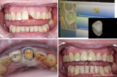Восстановление сломанной зубной коронки с помощью безметалловой керамической коронки
