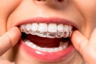 Индивидуальная капа для отбеливания зубов