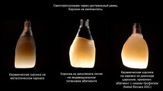 Наш иностранный коллега сделал наглядное сравнение различных типов каркасов коронок