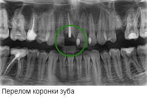 Снимок проблемного зуба