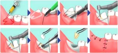 Лечение перикоронарита с удалением зуба мудности