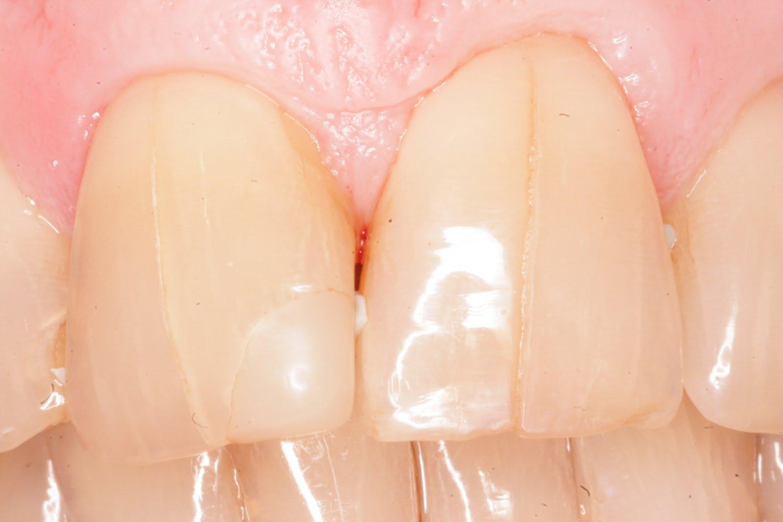пользователь трещина в зубе картинки кроуфорд