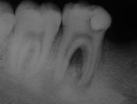 Обнаружение вторичного кариеса с помощью рентгеновского снимка