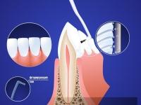 Фторосодержащие гели укрепляют эмаль зуба