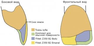 При реставрациях применяют различные композиты для замещения разных тканей, которые отличаются по цвету