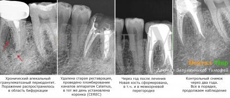 Хронический апекальный гранулематозный периодонтит. Лечение проводилось под микроскопом, применялся аппарат обтурации каналов жидкой гуттаперчей Calamus