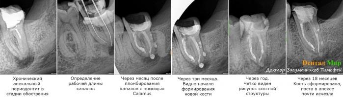 Хронический апекальный периодонтит в стадии обострения. Проведено пломбирование каналов лечебной пастой abscess remedy, чрез одну неделю повторная обработка и пломбирование аппаратом Calamus