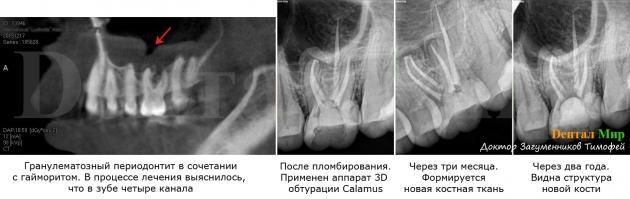 Гайморит и периодонтит гранулематозный. С помощью микроскопа был обнаружен 4й корневой канал. В результате оба заболевания были вылечены