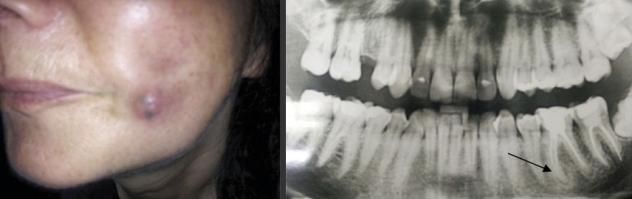 Еще один пример. Внешний вид больной М., 43 года, страдающей стационарной формой одонтогенной подкожной гранулемой левой щечной области (а); ортопантомограмма пациентки: хронический одонтогенный периапикальный очаг инфекции отмечен стрелкой (б). Российская стоматология. 2017;10(3): 16-21